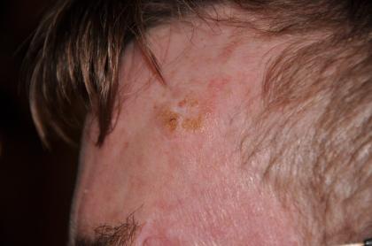 michael mcshane skin caner marijuana oil